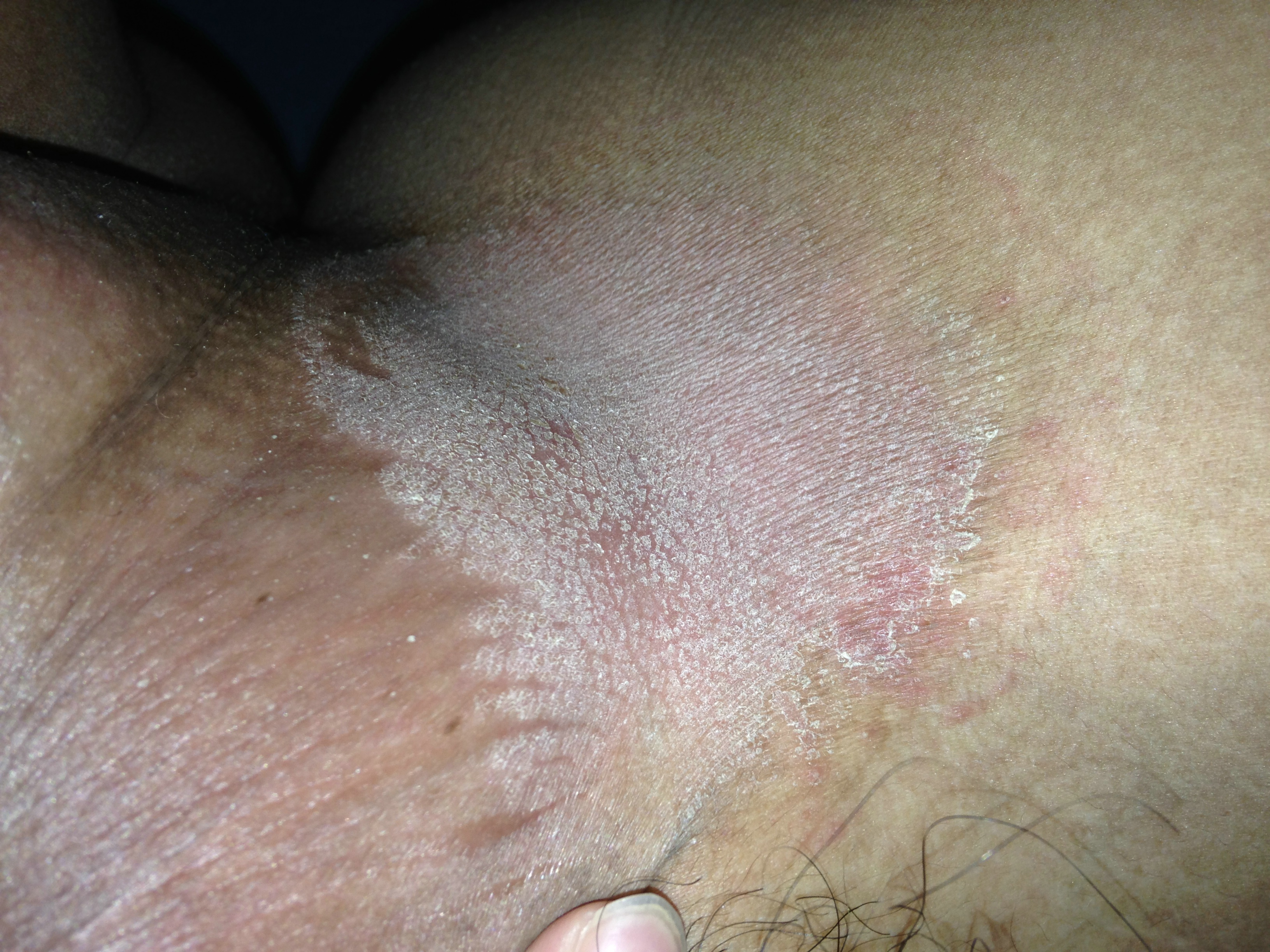 Vaginal rash and itch