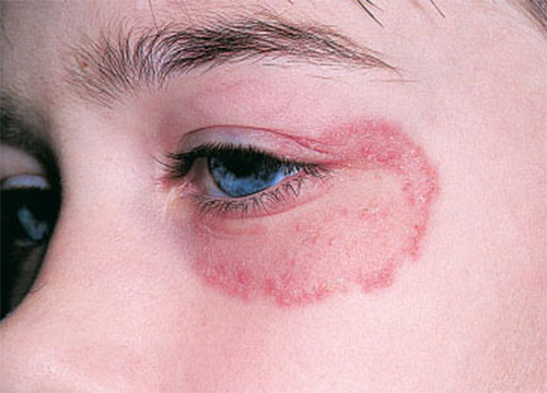 Ringworm Around Eye | | How To Cure Ringworm In 3 Days Or ...