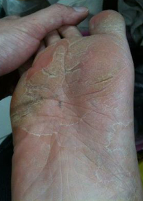 Athlete's Foot Symptoms | Athlete's Foot Pictures | LamisilAT®