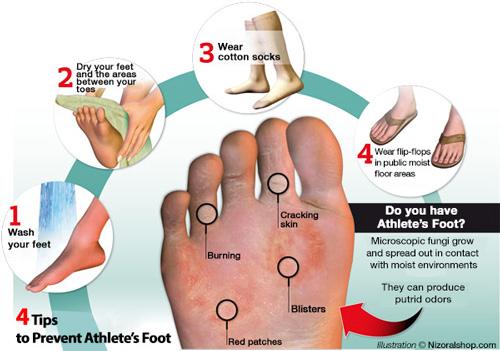 Foot Tinea Natural Treatment