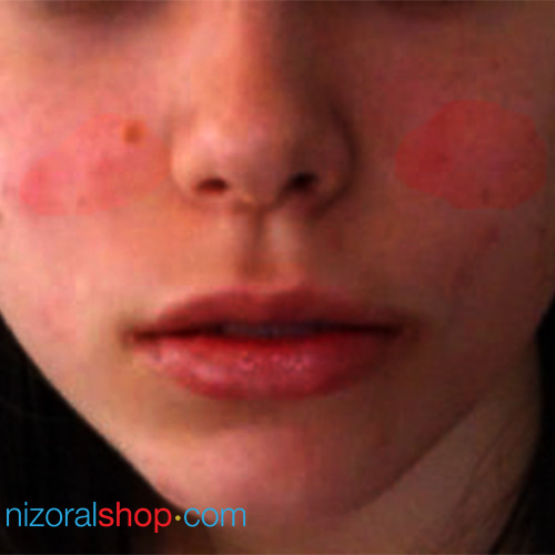 Natural Ways To Treat Eczema On Face